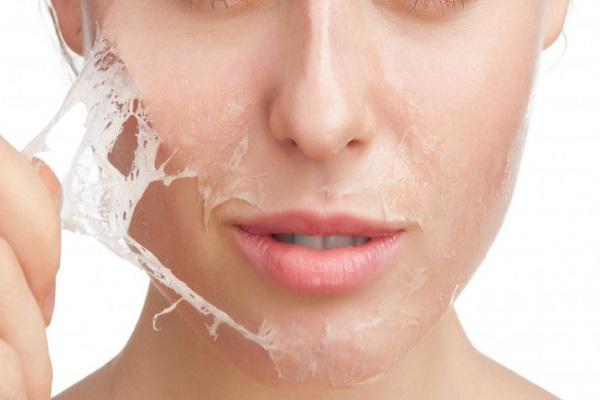 trị mụn rỗ bằng phương pháp peel da