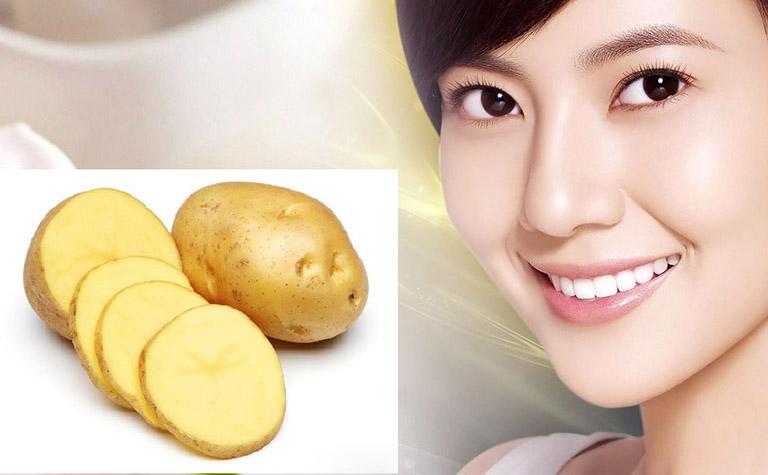 khoai tây đắp mặt trị nám