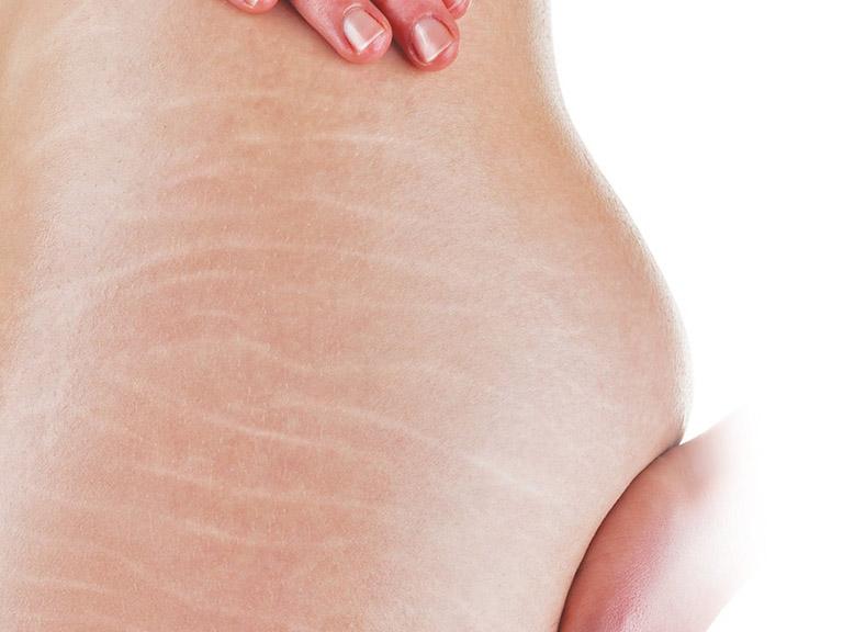cách trị rạn da mông