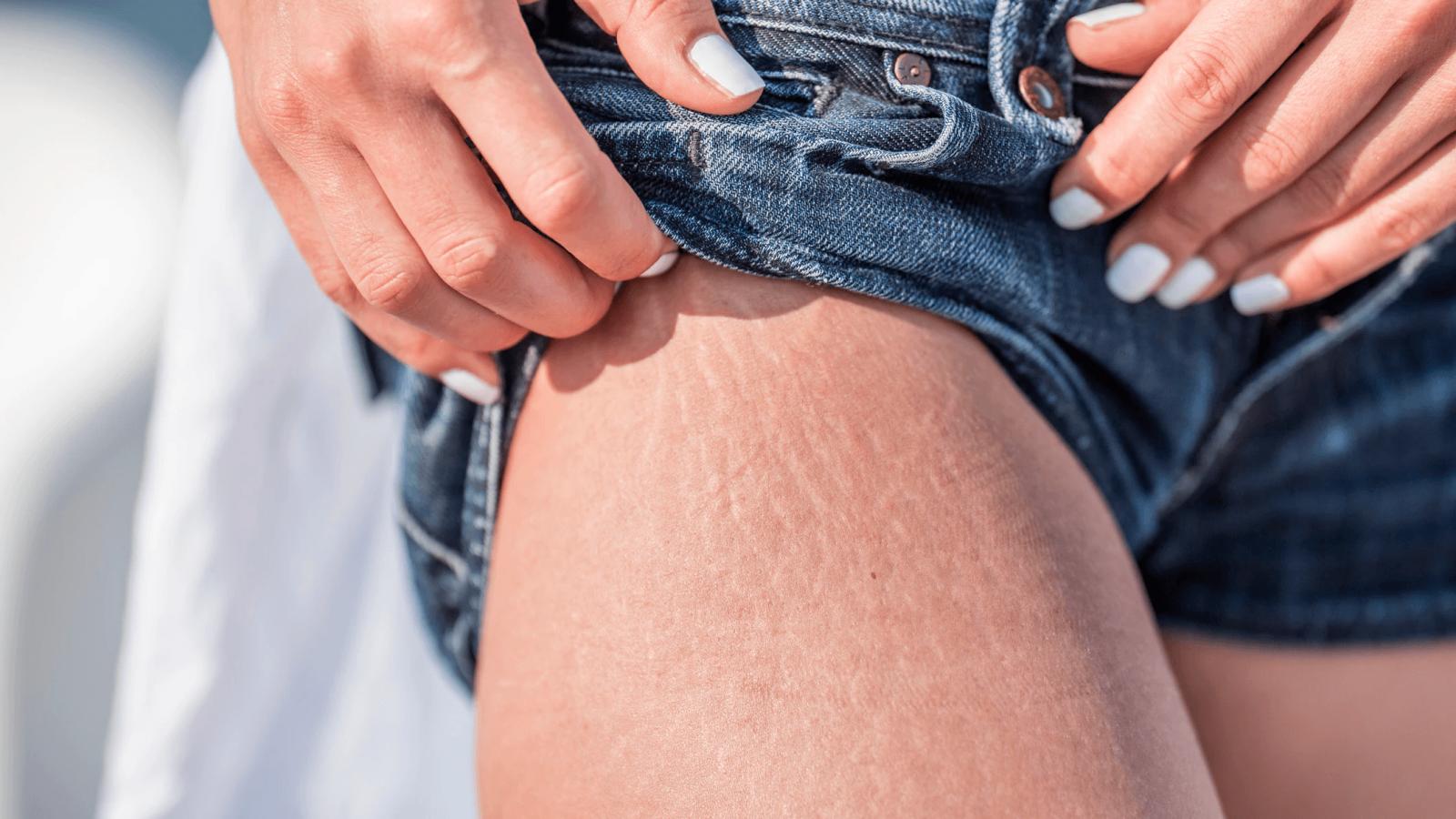 cách trị rạn da ở mông