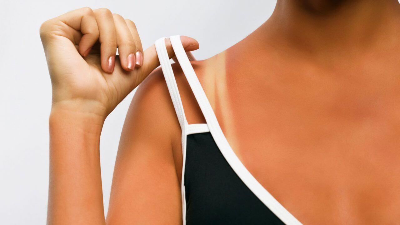Vì sao mùa hè làn da của chúng ta thường đen sạm?