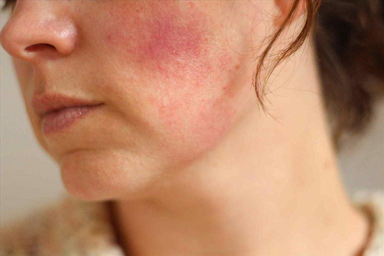 chữa dị ứng trên da mụn