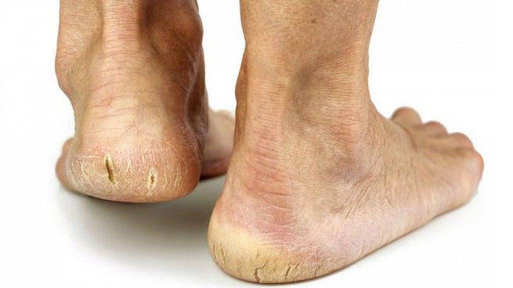 chân nứt nẻ