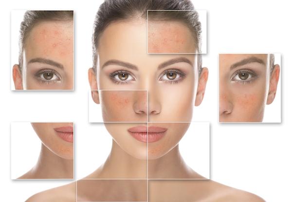 cách phục hồi da mặt bị hư tổn