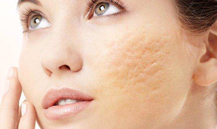 cách trị sẹo lõm trên mặt