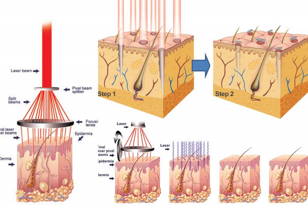 cách trị sẹo lõm trên da