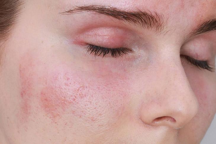 da mặt bị ngứa và nổi mẩn đỏ